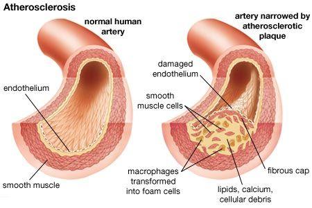 arteriosclerotic cardiovascular, arteriosclerotic cardiovascular disease